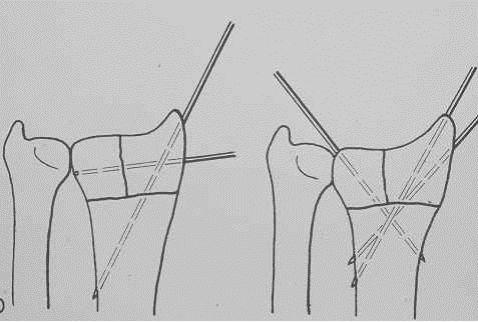 zapestje-igle